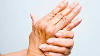 Research shows almost fifth of rheumatoid arthritis sufferers forced to retire