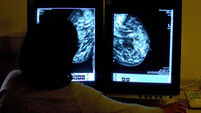 Trials suggest new drug may offer women with terminal breast cancer more time