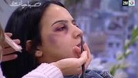 Moroccan state TV shows women how to hide domestic violence with make-up