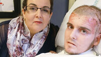 UK burns victim well enough to watch beloved Spurs