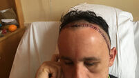 'They opened my skull, split me from ear to ear' - Ken Dunne says he's lucky to be alive