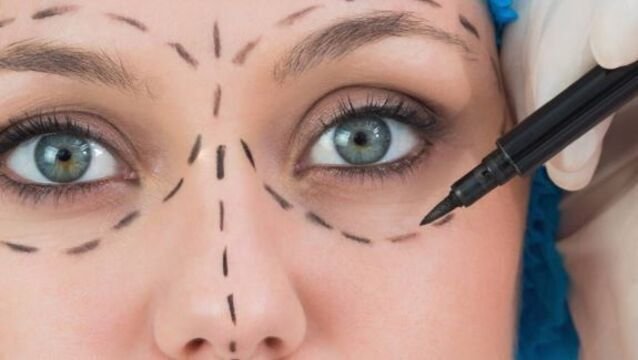 Treading a thin line with cosmetic surgery
