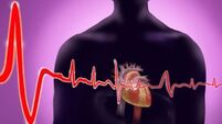 Man sues over faulty heart device
