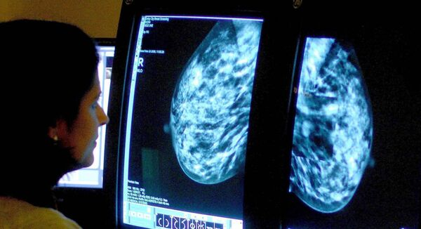 A consultant analyses a mammogram. Breast cancer screenings for older women in England have risen more than 25% in a decade, NHS data shows. Picture: PA