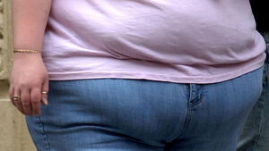Hundreds of thousands of Covid-19 deaths worldwide linked to obesity