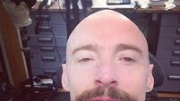 Jackman posts pics of newly-bald bonce