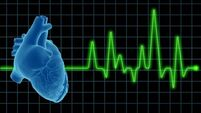 Links between irregular heartbeat and unexplained falls