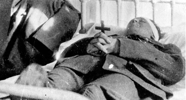 Michael Collins lying in hospital after being shot dead at Béal na Bláth.