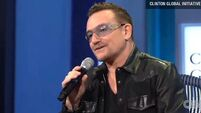 Three metal plates and 18 screws for Bono after cycling accident